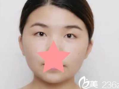 协和医院割双眼皮 分享我找福州协和医院整形科谢义德做双眼皮的恢复效果